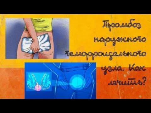 Тромбоз геморроидального узла лечение в домашних условиях отзывы