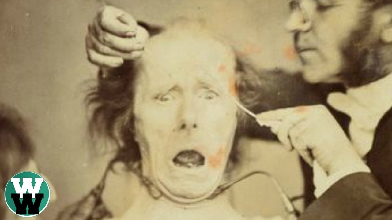 Vintage medical photo confirm. And