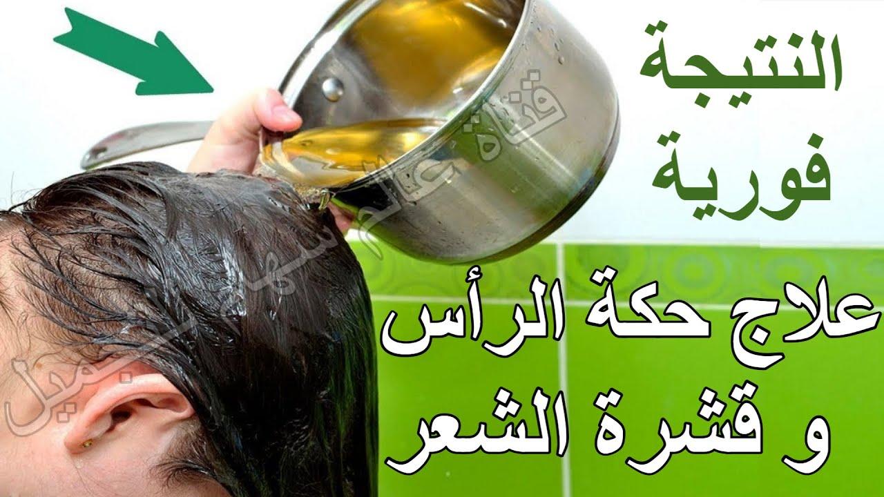 علاج قشرة الشعر وحكة فروة الراس من اول استعمال وصفة التخلص من لقشره سريعة جداا مضمونه مليون في مية Youtube