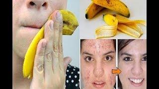 Избавитесь от ,ПРЫЩЕЙ, ГИЛЬМИНТОВ И ПСОРИАЗА, с простой кожурой банана / 20 секретов кожуры