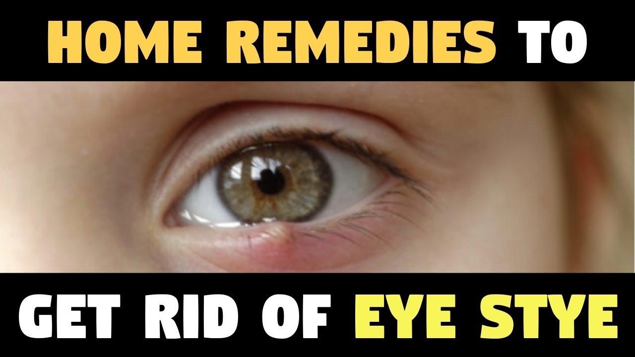 Eye Stye Why Leave Styes Eye Home Remedies To Get Rid Of Eye