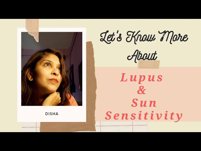 lupus and Sun sensitivity - My take on dealing with it!