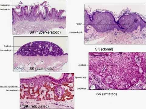 Dermatopathology101-Normal skin histology, non-neoplastic skin disorders, and skin cancers.mov
