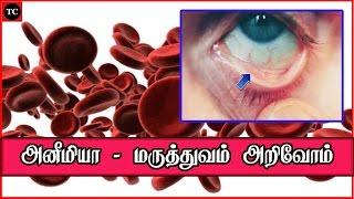 அனீமியா எப்படி வருகிறது? | Anaemia. Information and Symptoms of Anaemia