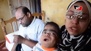 مأساة ١٠ أطفال مصابين بـ«التمثيل الغذائي» بالدقهلية