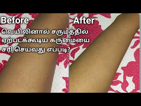 Beauty Tips For Darkness In Tamil