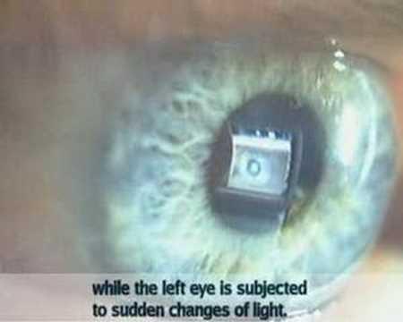 Consensual pupillary reflex