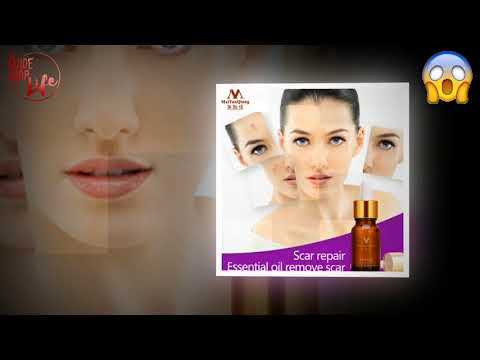 acne-scar-removal-pigmentation-corrector-whitening-repair-skin-lavender-essential-oil