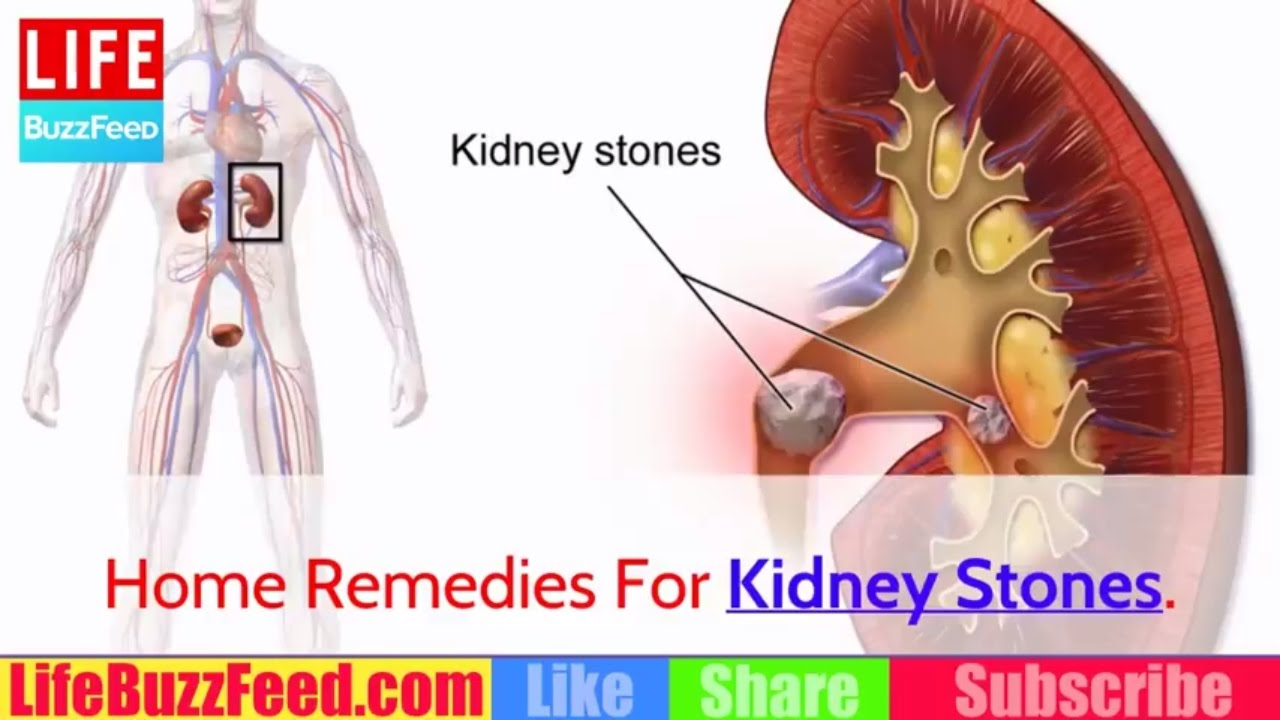 how to clear kidney stones naturally