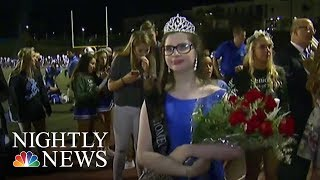 The California Girl Who Can't Go Out in the Sun Named Homecoming Queen | NBC Nightly News