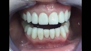 Установка керамических виниров E-Max.(Пациентка обратилась в нашу клинику с проблемой отсутствия зубов и эстетической проблемой. Было принято..., 2016-09-15T10:37:03.000Z)
