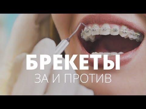 видео: Всё, что вы хотели знать про брекеты, но боялись спросить