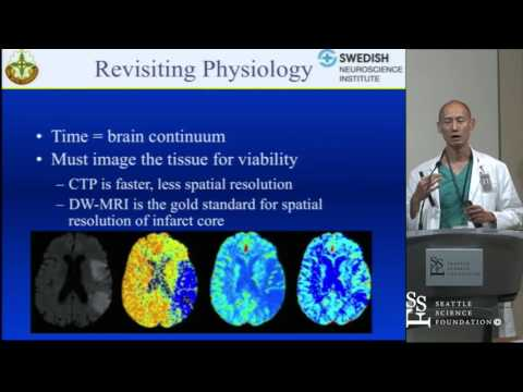 The State of Stroke Intervention by Yince Loh, M.D.