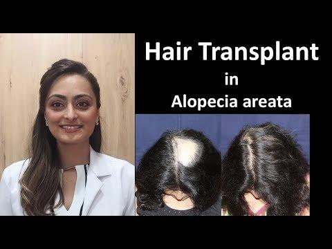 Hair Transplant in alopecia areata ( recalcitrant, treatment resistant)