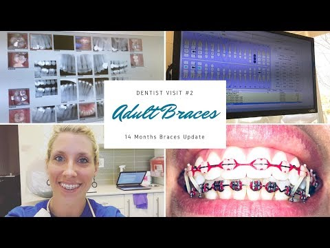 """""""ADULT BRACES"""" 