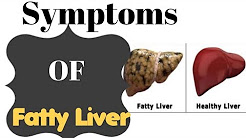 Most Common Symptoms Of Fatty Liver And The Best Way To Cleanse It