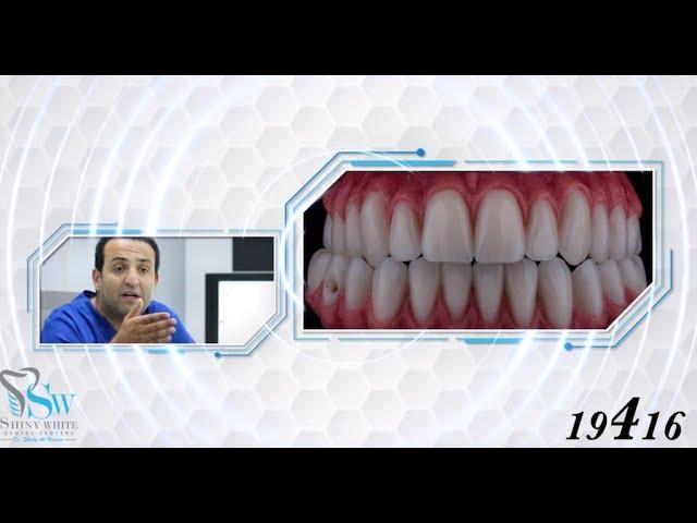 نتيجة مذهلة لزراعة الأسنان فقط فى شاينى وايت