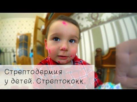 Стрептодермия у детей. Стрептококк.