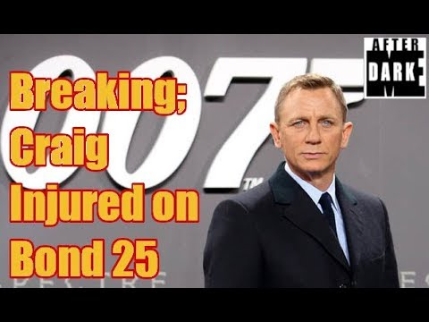 Breaking; Craig Injured on Bond 25 Set
