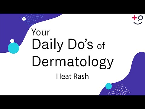 Heat Rash - Daily Do's Of Dermatology