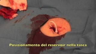 GAVeCeLT - inserzione di port venoso: utilizzo di colla in cianoacrilato
