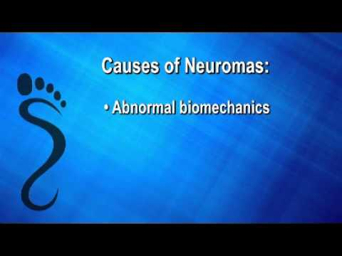 Foot and Ankle Neuromas Described by Leading Scottsdale Podiatrist Dr. Rick Jacoby