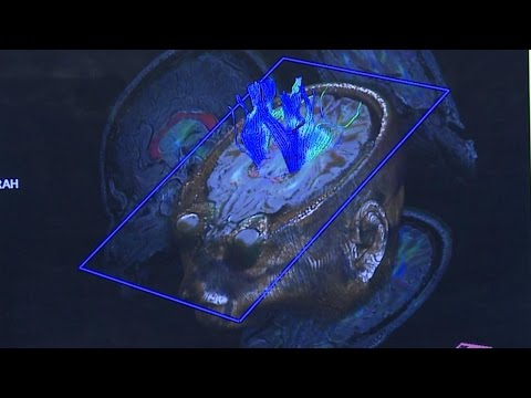 Space Station Live: MRI for Astronaut Vision Research