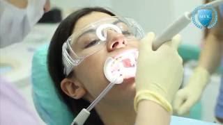профессиональная гигиена полости рта(Процедура профессиональной гигиены помогает надолго сохранить здоровье зубов и десен. Избавиться от налет..., 2016-02-24T13:08:05.000Z)