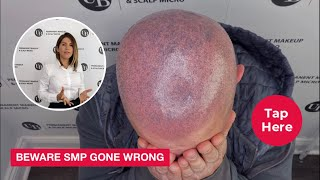 """""""beware Smp Gone Wrong""""  - How To Correct Scalp Tattoo By Unyozi Beauty"""