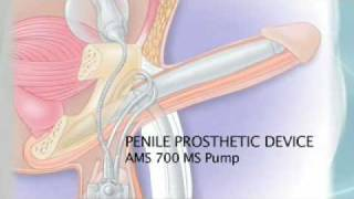 Repeat youtube video Erectile Dysfunction, Penile Prosthesis and Prostate Cancer