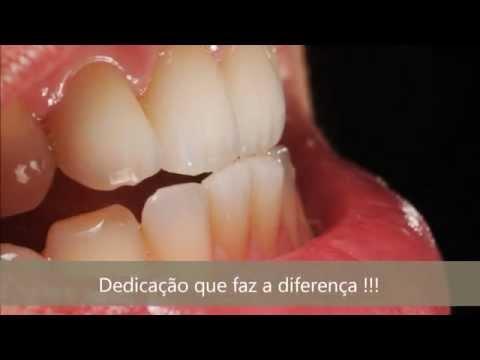 Vídeo Curso protetico