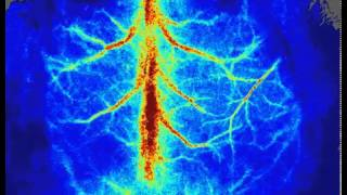 moorFLPI2によるマウス脳虚血モデル測定