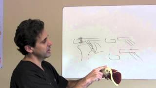 shoulder instability dr j michael bennett houston tx