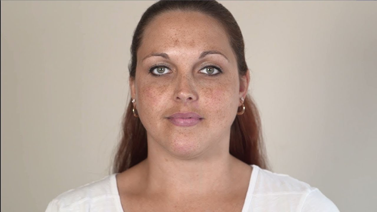 Akne-Folgen vor und nach Gewichtsverlust