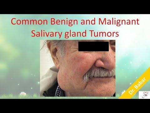 how to treat blocked salivary glands