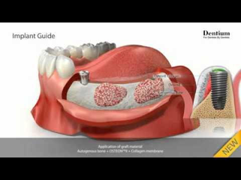 Зубные импланты: за и против. Зубные импланты: цена, отзывы