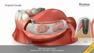 Мост из 3 зубов с опорой на импланты(, 2015-05-07T03:19:05.000Z)