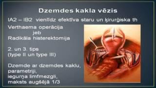 Ginekologs Ronalds Mačuks par dzemdes kakla vēža diagnostiku un ārstēšanu(http://www.onkoginekologija.lv/index.php/kalkulators.html Vairāk kā 80% jauno gadījumu tiek diagnosticēti sievietēm, kuras dzīvo ekonomiski nelabvēlīgos ..., 2013-03-13T18:43:09.000Z)