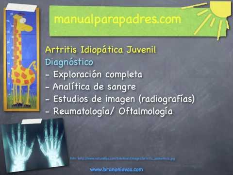 artritis-idiopática-juvenil