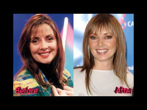 Carol Vorderman Plastic Surgery - Looking better with age