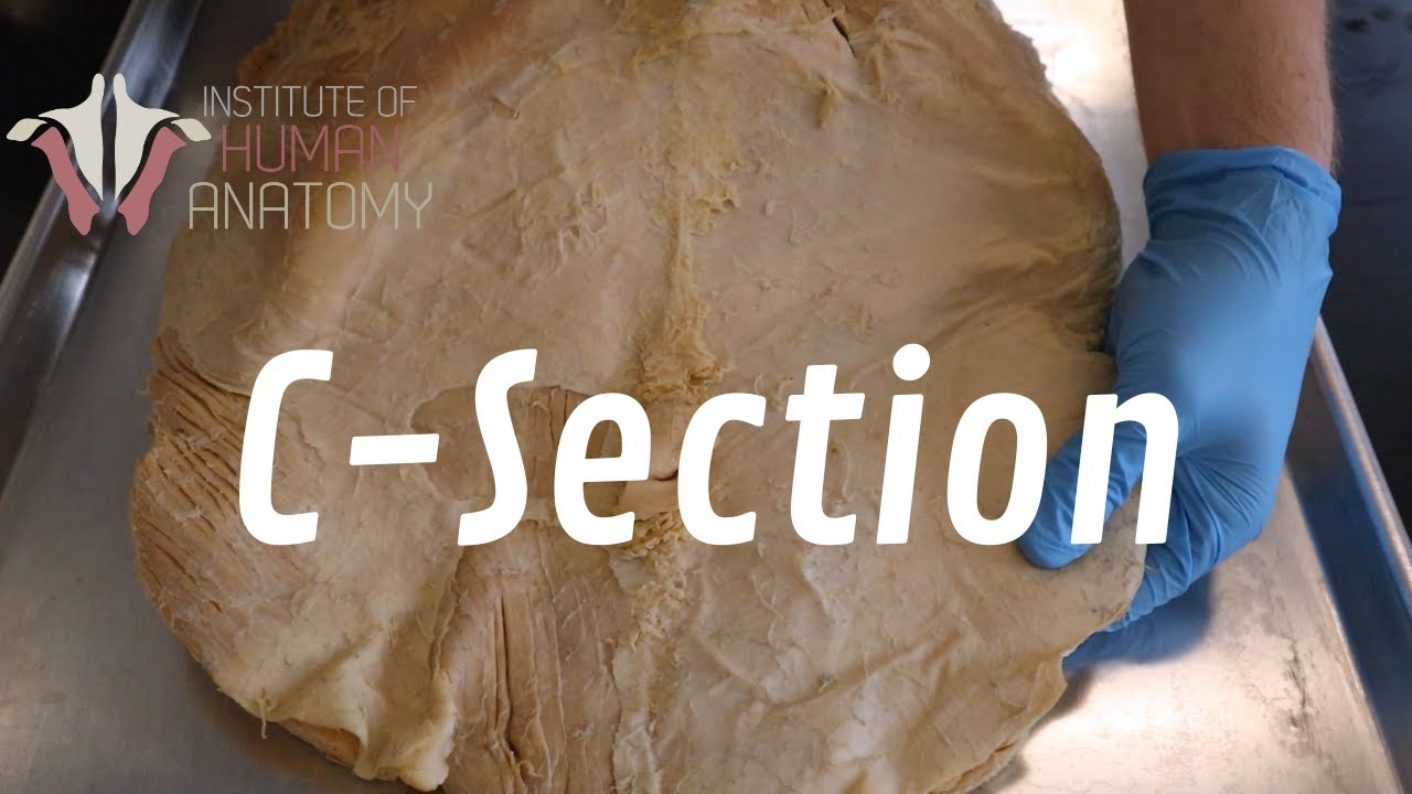 Download The Anatomy of a C-Section