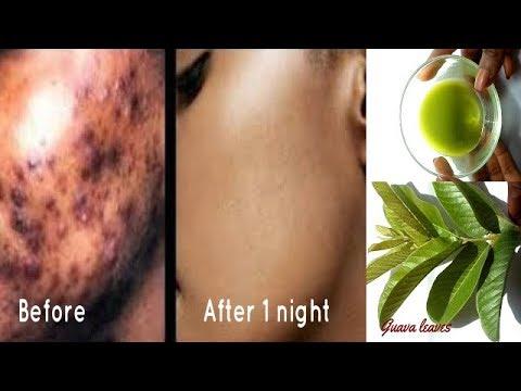 Remove Dark Spots In 1 Night Using Guava Leaves