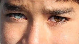Get 1 Brown Eye & 1 Blue Eye Fast Heterochromia Subliminal B...