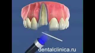 видео протезирование зубов в в Санкт-Петербурге