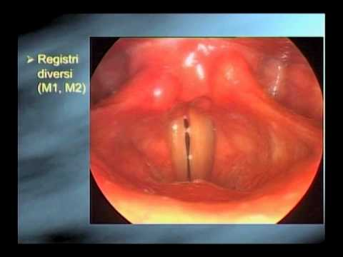 Franco Fussi how to see a singer's vocal cords: from the high speed to the strobe
