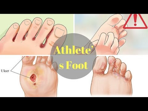 20 Home Remedies for Athlete's Foot