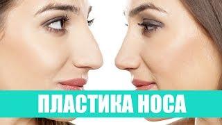 Пластика носа(В фильме представлены фрагменты риносептопластики (после удаления части перегородки носа 3 года назад)...., 2015-02-19T07:32:56.000Z)