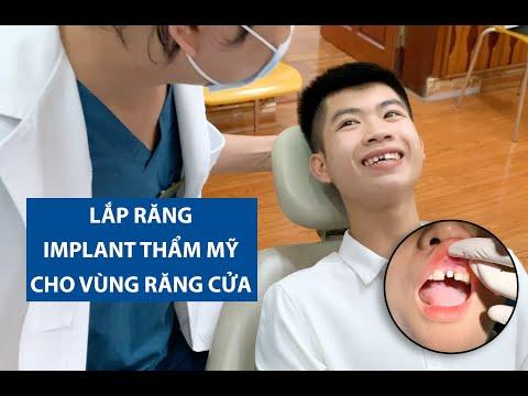 Lắp răng sứ hoàn thiện 2 case Implant thẩm mỹ răng cửa