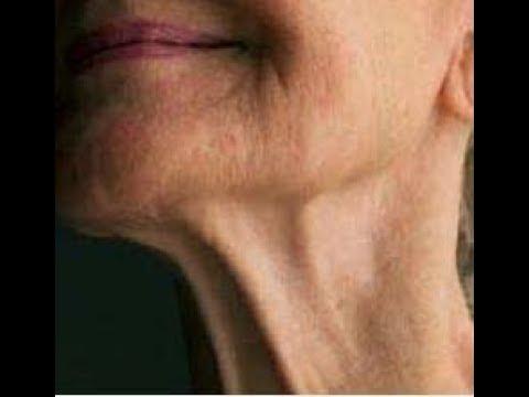 Морщины на шее. Упражнения для подтяжки и уменьшения морщин.