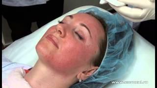видео Ботокс в губы: процедура, эффект, показания и противопоказания